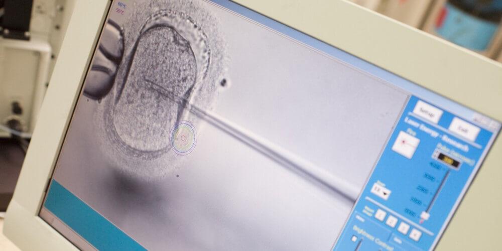 Monitor zeigt Bild einer künstlichen Befruchtung
