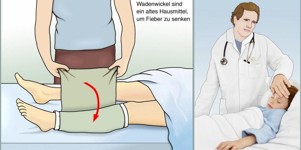 Anwendung eines Wadenwickels bei Fieber