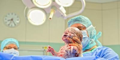 Vor- und Nachteile von natürlicher Geburt und Kaiserschnitt